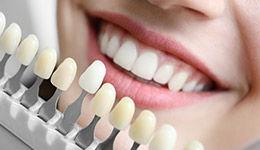 Smile compared with tooth color chart