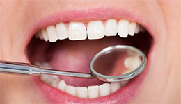 Healthy smile with dental mirror