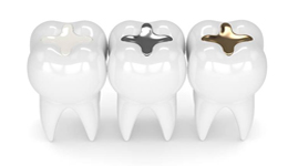 Tooth-colored, silver and gold fillings