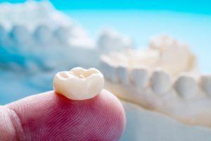 dentist holding a dental crown on their finger
